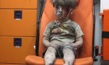 Older Brother Of Omran Daqneesh Dies From Injuries Sustained In Airstrike