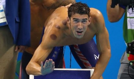 So, does Michael Phelps count on flossing?